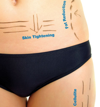 3D Lipo Advanced Treatments