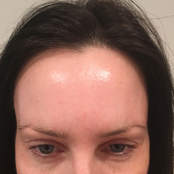 BOTOX® Anti-wrinkle Injections Anti Wrinkle Injections And