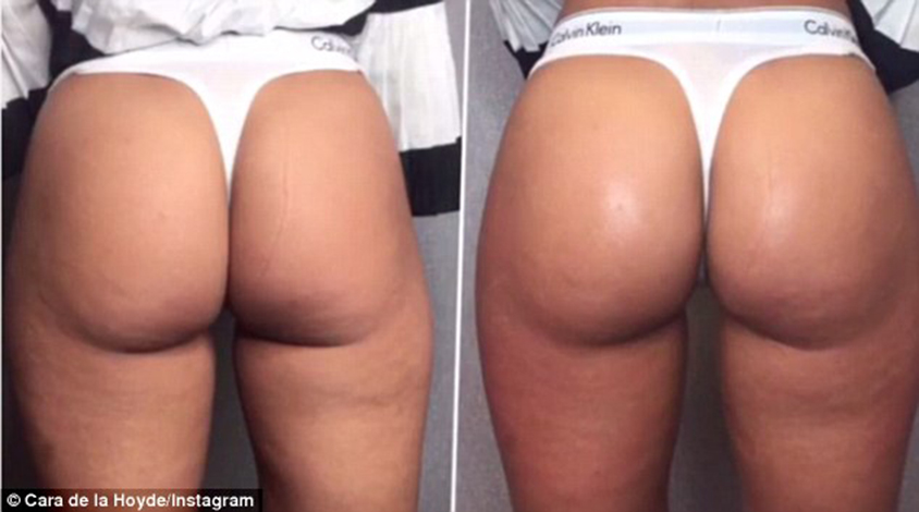 Before and after: The dancer revealed the results of her bum lift - showcasing the work it can do in so little time.