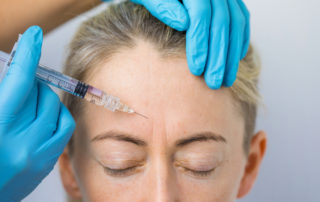 How long do anti wrinkle injections last?