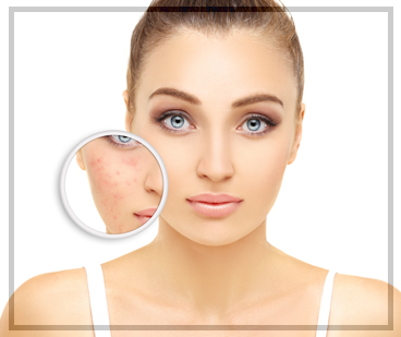 Aesthetic Treatments - Rosacea Treatment